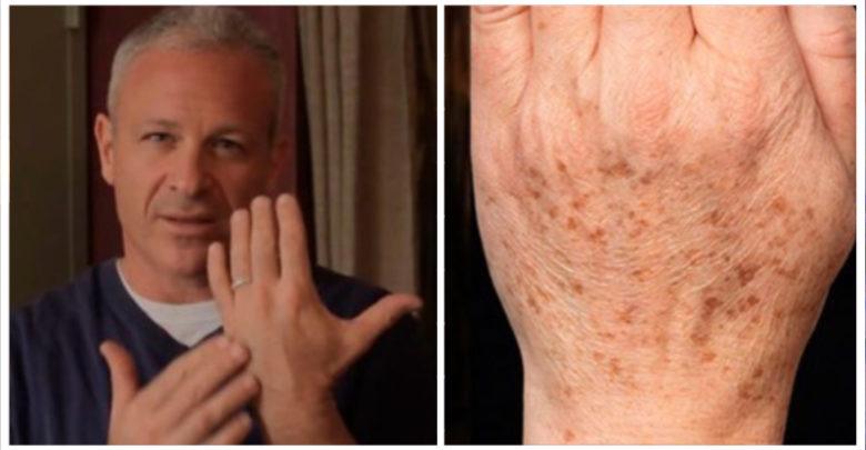 Rimedio naturale di un noto dermatologo