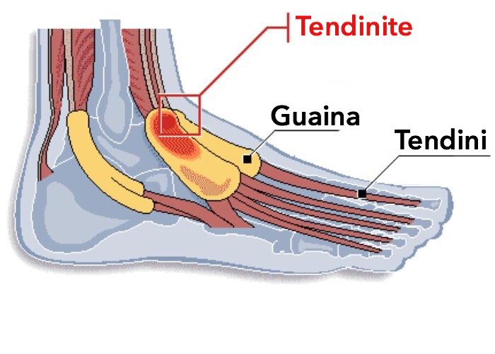 Tendinite