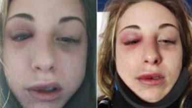 Photo of Ragazza picchiata dal fidanzato publica online le foto del volto tumefatto