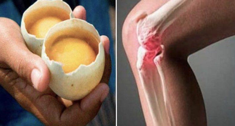Rimedio naturale per dolore alle ginocchia