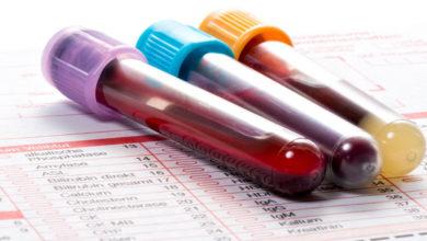 Photo of Un esame del sangue potrebbe offrire una diagnosi veloce della Fibromialgia