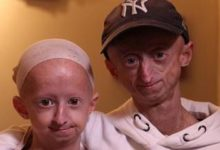 Photo of I fratelli Vandeweert lottano con la progeria e sperano di superare il record
