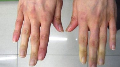 Photo of Avete sempre le mani fredde che cambiano anche colore? Ecco le cause