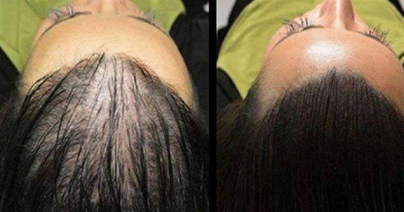 ricetta per crescita capelli