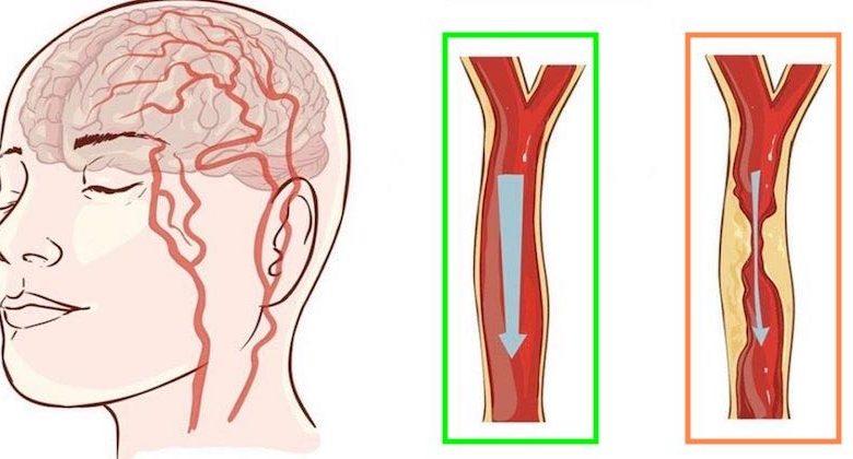 sintomi cattiva circolazione sanguigna