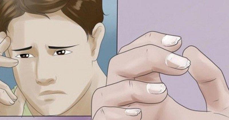 sintomi dell'anemia