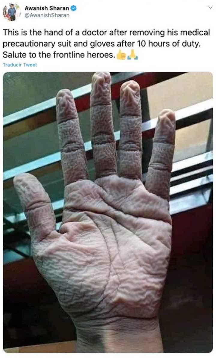indossato per 10 ore i guanti