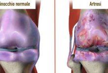 Photo of I migliori rimedi naturali, scientificamente provati, per i dolori articolari e l'osteoartrosi del ginocchio