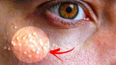 Photo of Milia, i rimedi naturali per eliminare le palline bianche di grasso sotto gli occhi