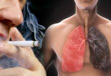 Photo of I polmoni possono rigenerarsi se si smette di fumare, grazie a cellule speciali che sostituiscono quelle danneggiate