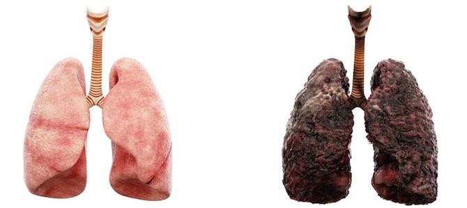 sostituiscono quelle danneggiate nei polmoni