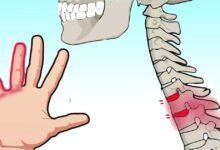Photo of Mani intorpidite, 7 motivi per cui dovremmo prestare più attenzione al nostro stato di salute quando si manifesta questa sensazione