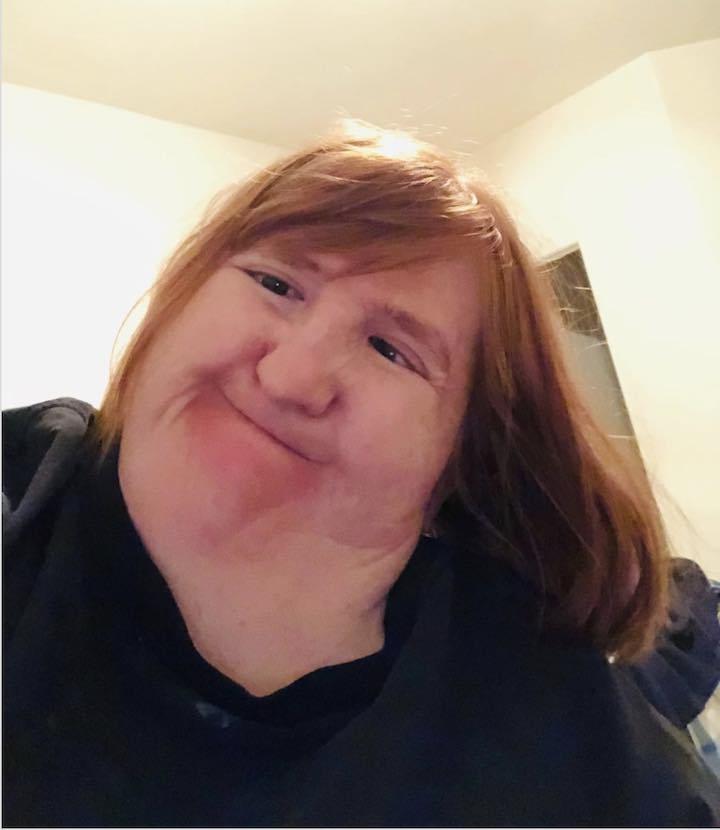 Melissa Blake troppo brutta per i selfie